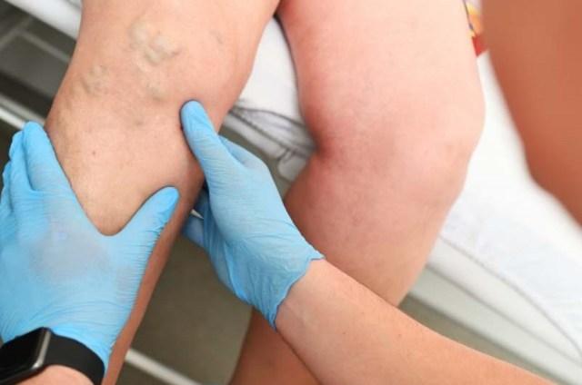 arbre secoué feuilles volent