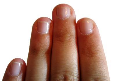 Finger nail progress, left hand