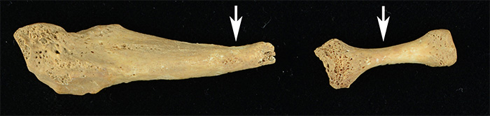 Foot bones with lesions