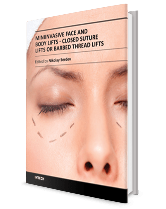 Miniinvasive Face and Body Lifts - Closed Suture Lifts or Barbed Thread Lifts