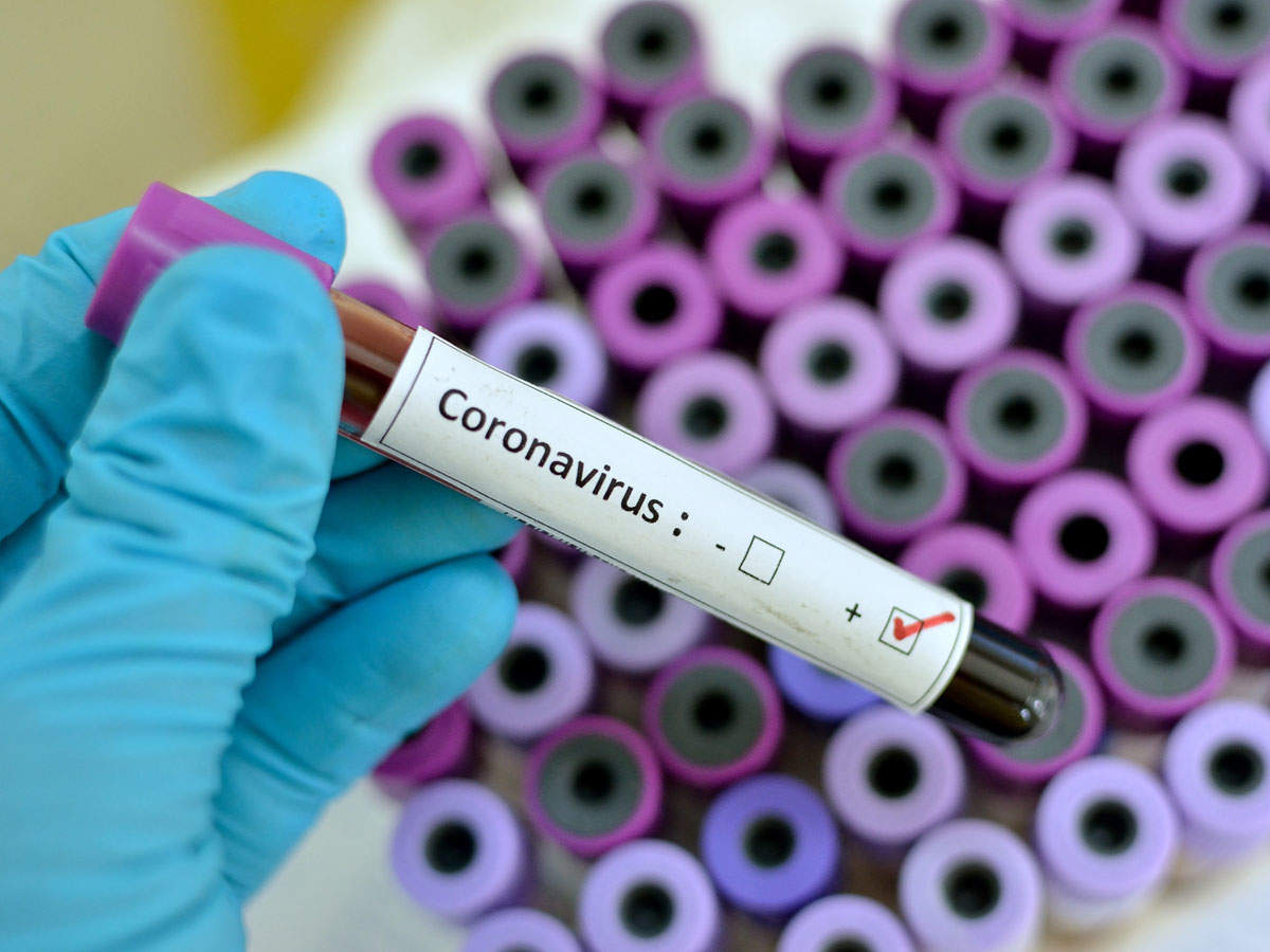 【2019-Novel Coronavirus】Everything You Need to Know About the China Coronavirus:Symptoms, Prevention, Treatment