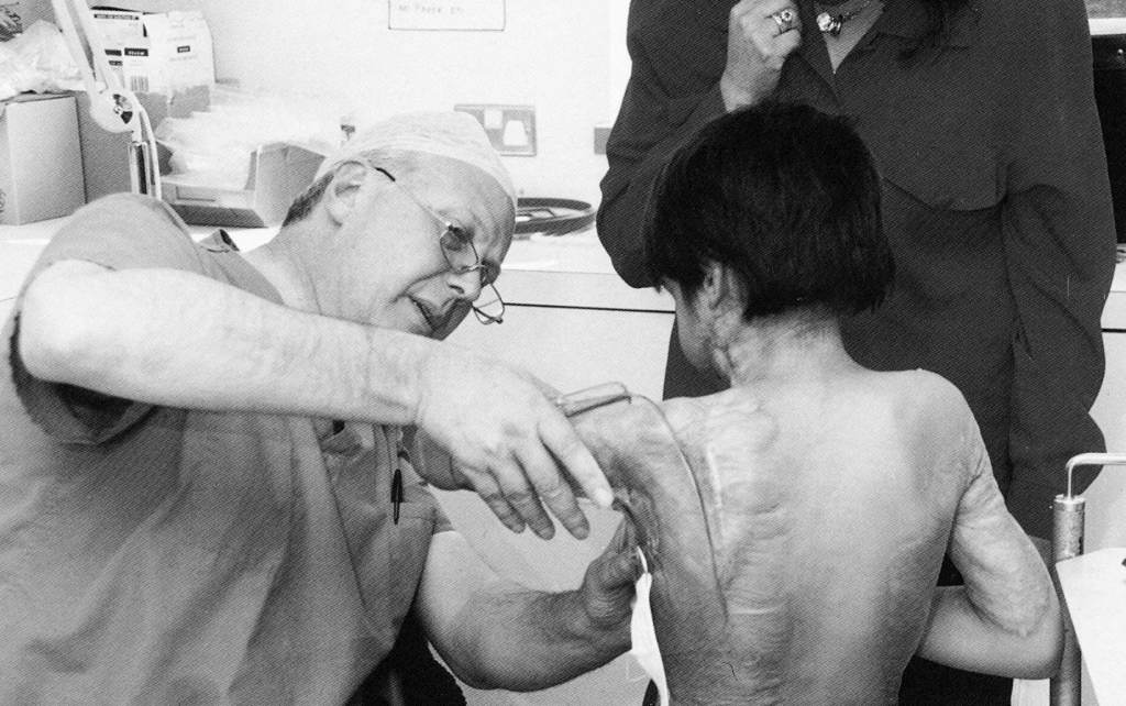 Mr Clarke, Consultant Plastic Surgeon, fitting a younger patient with a special splint made at Queen Mary's