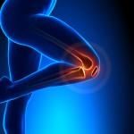 patellofemoral pain syndrome anatomy