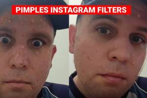 Pimples Instagram filter – Virtual pimples on your face!