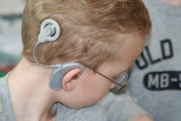 Spinonews.com Cochlear Implant System