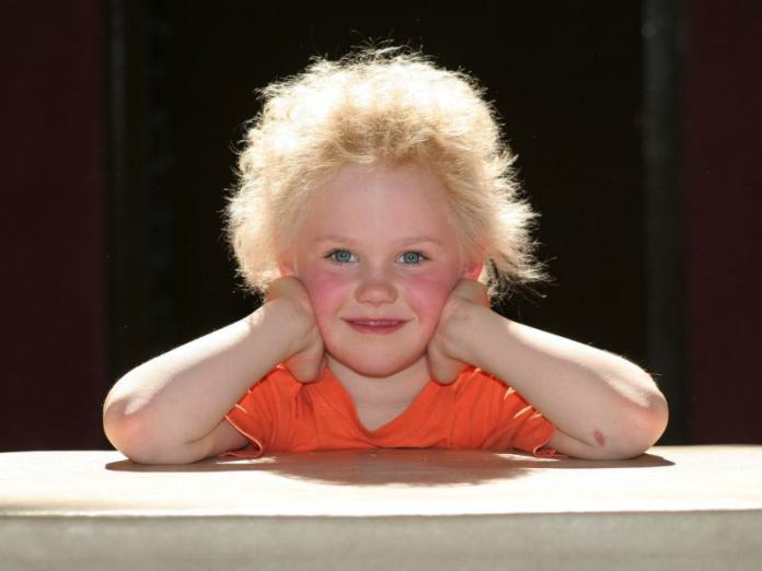 spinonews Uncombable hair syndrome