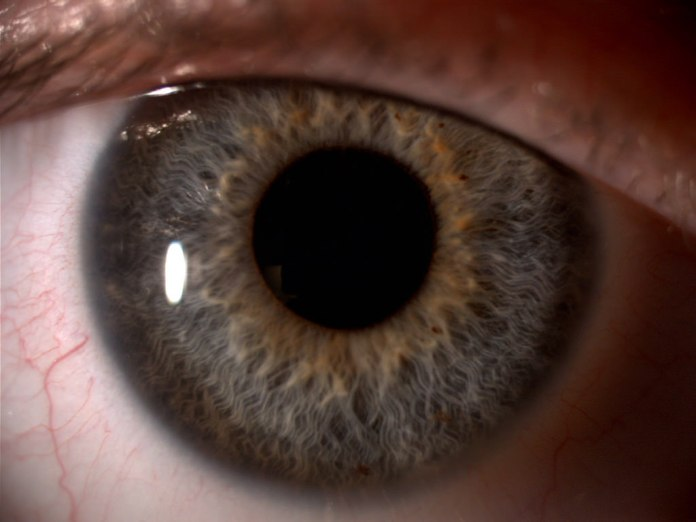 spinonews Dry eye syndrome