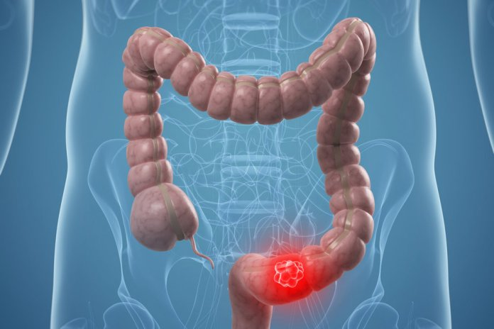 spinonews Colorectal cancer