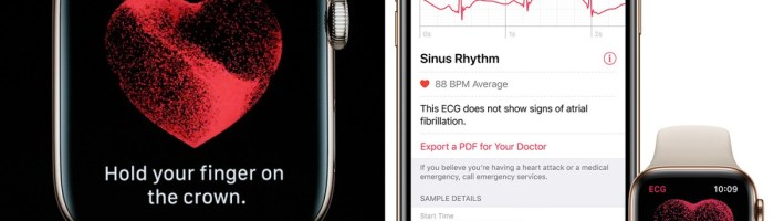 Functia electrocardioagrama de pe Apple Watch 4 functioneaza si in Romania