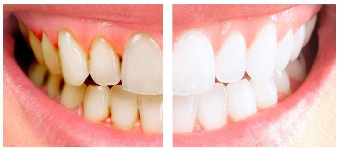 Fakta bahwa gigi kuning lebih Kuat