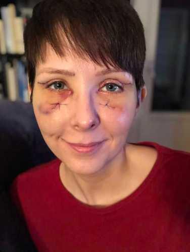 Arga Klara efter ögonlocksplastik, ögonlocksoperation