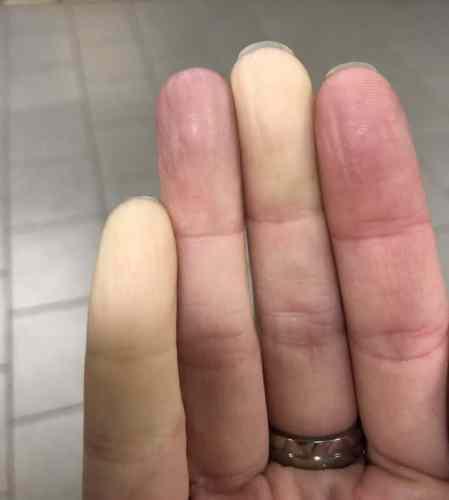 Raynauds syndrom, vita fingrar