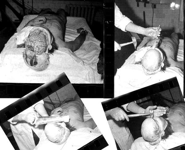 Лагерь Бутугычаг. Медицинские эксперименты на мозге заключенных. Фото из архива НКВД.