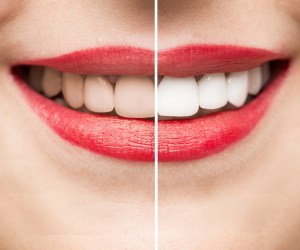¿Cómo funciona el blanqueamiento dental?