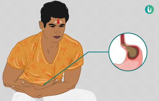 Trypsin Chymotrypsin Tablet Uses in Hindi - उपयोग हिंदी में