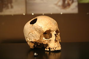 Un tesoro con cráneos peruanos y sudamericanos se oculta en Madrid