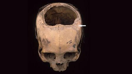 South America's Inca civilization was better at skull surgery than Civil War doctors