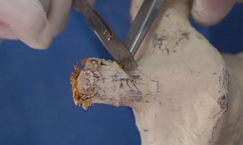 mumia-arterias