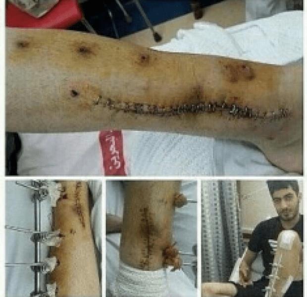 Ayoub Adil, salah satu tahanan politik yang disiksa secara kejam di Bahrain