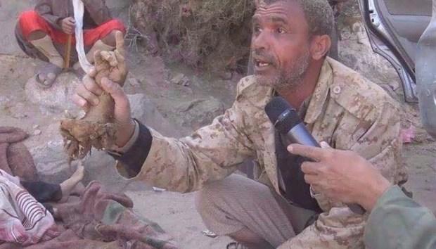 SADIS! Saudi Hina Maulud Nabi Dengan Bantai Warga Yaman