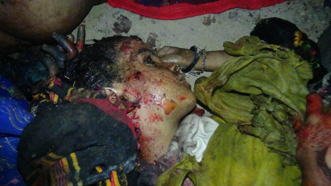 serangan di Hamish al-Qaramish