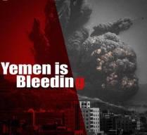 #YemenGenocide