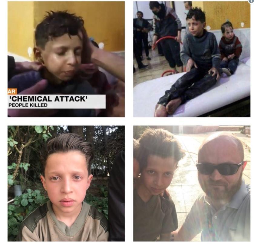 Bocah dalam Video White Helmets Ungkap Serangan Kimia Palsu