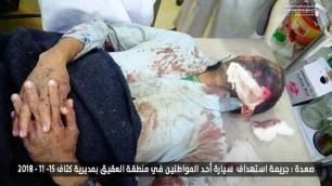 Korban Agresi Saudi di Yaman