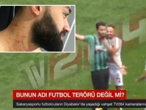 MENGEJUTKAN! Pemain Bola Turki Ini Serang Lawan Main dengan Silet