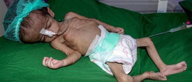LSM: 3.600 Anak Yaman Tewas, 800 Cacat dan 400.000 Kurang Gizi Akibat Agresi Saudi