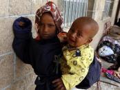 Krisis Kemanusiaan Kian Memburuk di Yaman