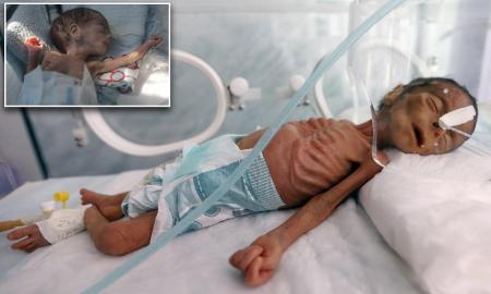 UNICEF: Jutaan Anak-anak Yaman Kelaparan di Tengah Pandemi