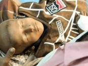 Menkes Yaman: Ribuan Pasien Beresiko Meninggal Akibat Blokade Koalisi Saudi