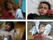 Potret Mengerikan Anak-anak Yaman Korban Agresi Biadab Saudi