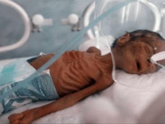 Yaman: Tragedi Kemanusiaan Besar akan Terjadi Jika Blokade Saudi Tak Segera Dibuka