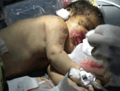Koalisi Saudi Lancarkan 600 Serangan Udara ke Yaman, Ma'rib TerparahKoalisi Saudi Lancarkan 600 Serangan Udara ke Yaman, Ma'rib Terparah