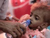 Komentar Pedas Zarif ke Sekjen PBB: Dunia Harus Hentikan Perang Yaman