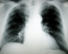 Que subissent exactement les poumons de fumeur