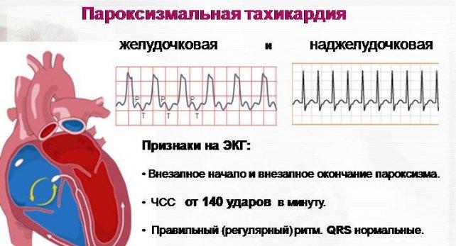 Тахикардия сердца – основные факторы риска заболевания. Чем опасна тахикардия