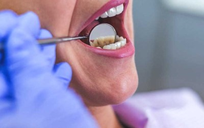 5 Common Dental Problems and Best Ways to Treat Them