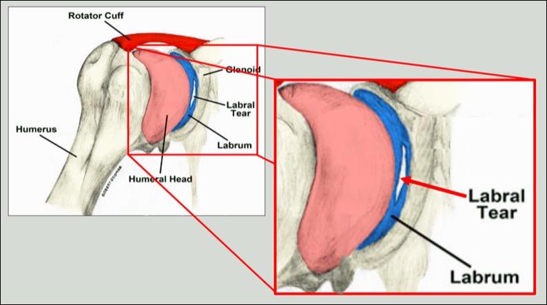 Right Shoulder Labrum Tear