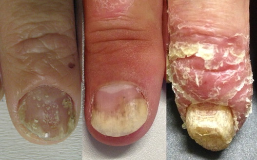 Clinical Manifestations Of Nail Psoriasis