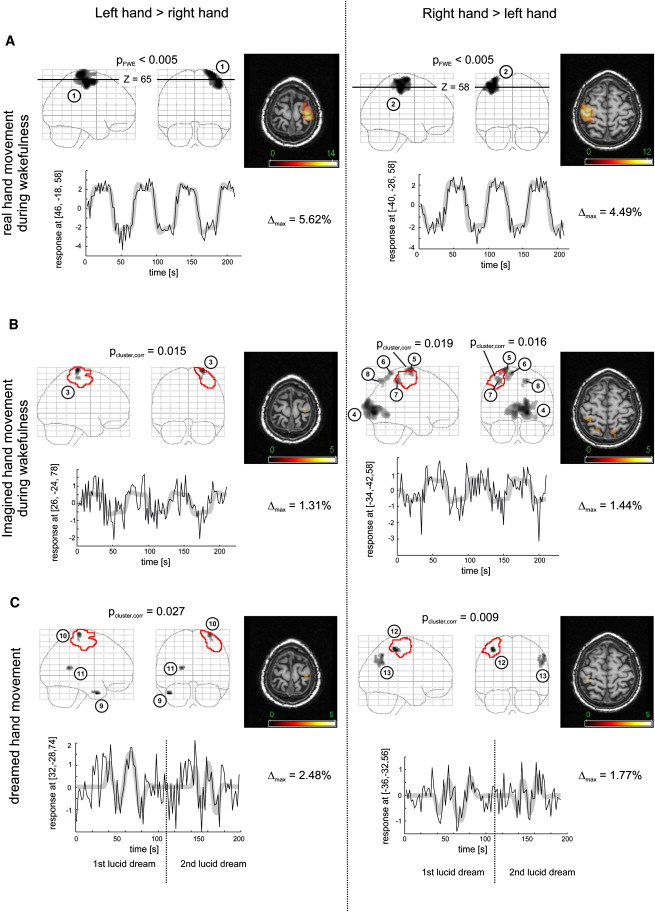 Comparison of Sensorimotor Activation during Wakefulness and SleepFunctional ...