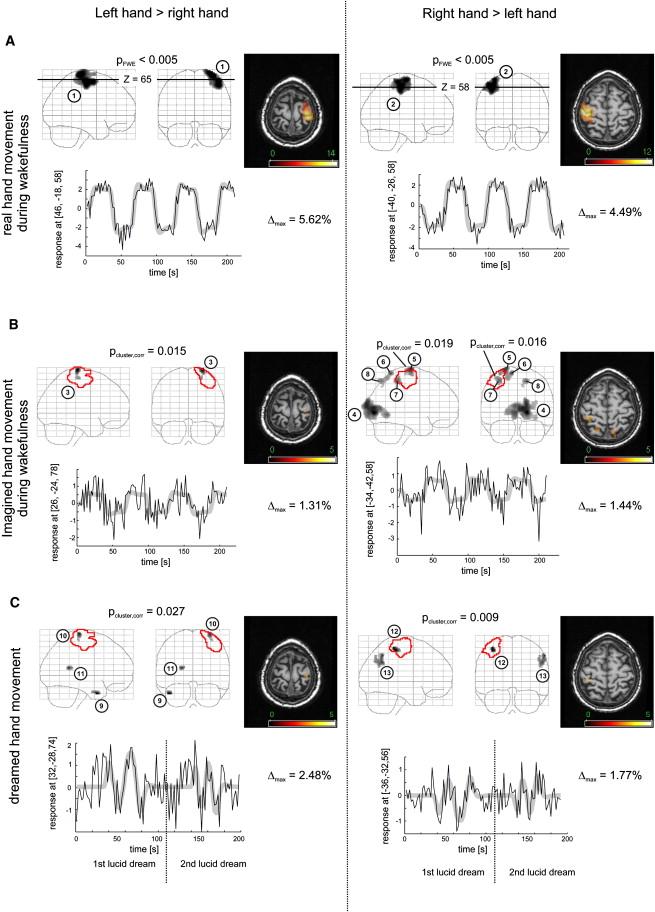 Comparison of Sensorimotor Activation during Wakefulness and SleepFunctional ...