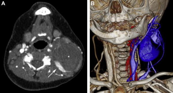 (A) Axial contrast-enhanced CT reveals a solid, nonenhancing mass (*) with…