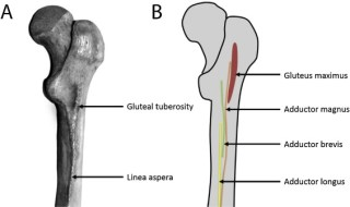 10. In Anatomy Revision,Explain  bone in the body which has the following features and characteristics: linea  aspera, intercondylar notch and an anterior bow to its shaft? Give account of  detail about joint located their? Explain hamstring muscles and where it is located ? Give details about its type?