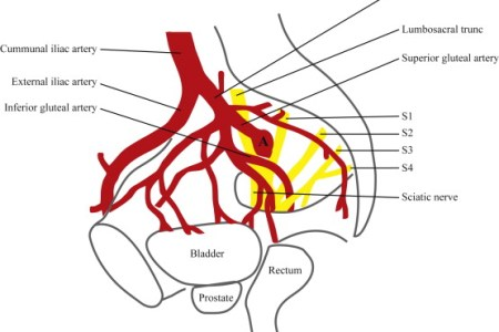 interior iliac artery interior » Electronic Wallpaper | Electronic ...