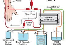 Hemodialysis Machine Procedure Parts and Function