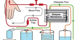 Hemodialysis Machine Procedure Parts and Function