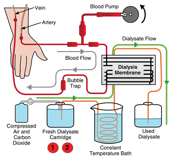 Hemodialysis machine procedure parts and function ccuart Images